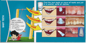 baby tooth accident
