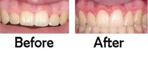 gum contouring