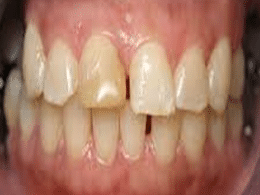 Why Do I Have A Tooth Discoloration?