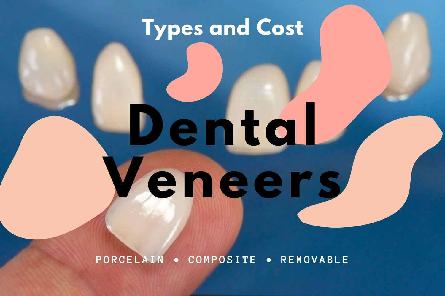 Types of veneers and cost