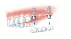 What-is-an-implant