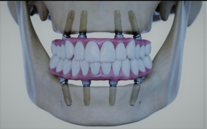 modern tooth replacement system
